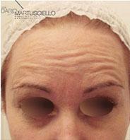 Before-Botox