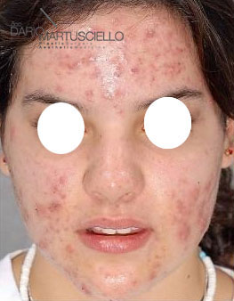 Before-Acne 1