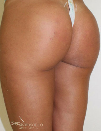 After-Glutei 7