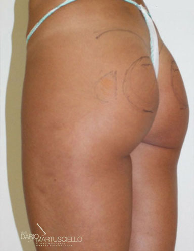 Before-Glutei 7