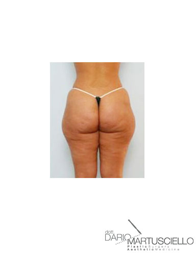 Before-Liposcultura tridimensionale
