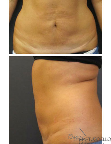 After-Liposcultura tridimensionale superficiale