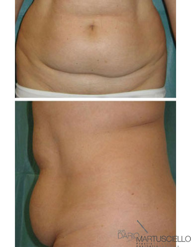 Before-Liposcultura tridimensionale superficiale