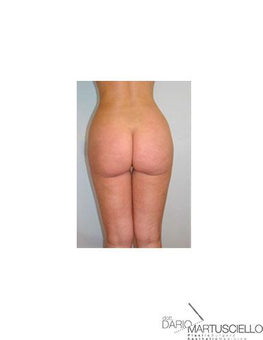 After-Liposuzione