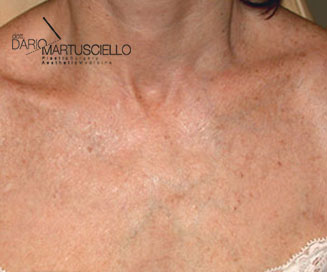 After-Laser CO2 Frazionato