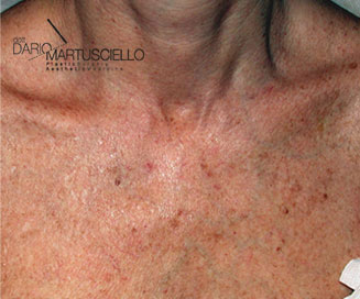 Before-Laser CO2 Frazionato