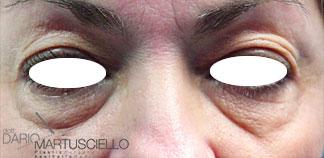 Before-Occhi 2