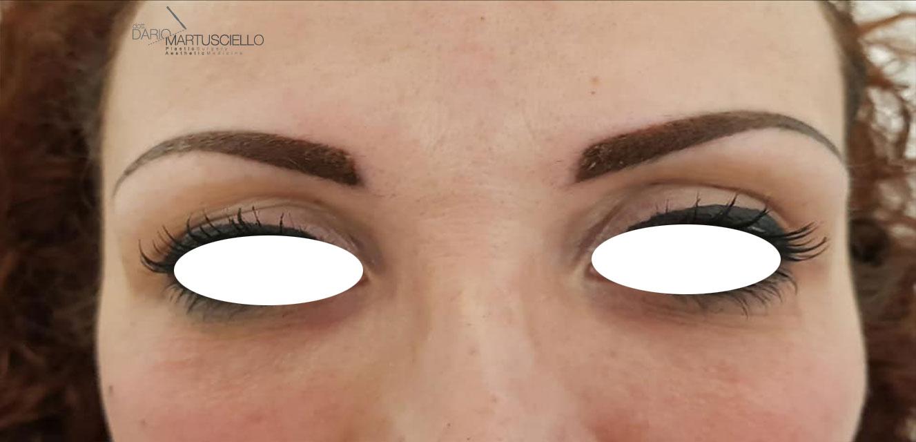 After-Trattamento Occhiaie con micro-iniezioni di Acido Ialuronico
