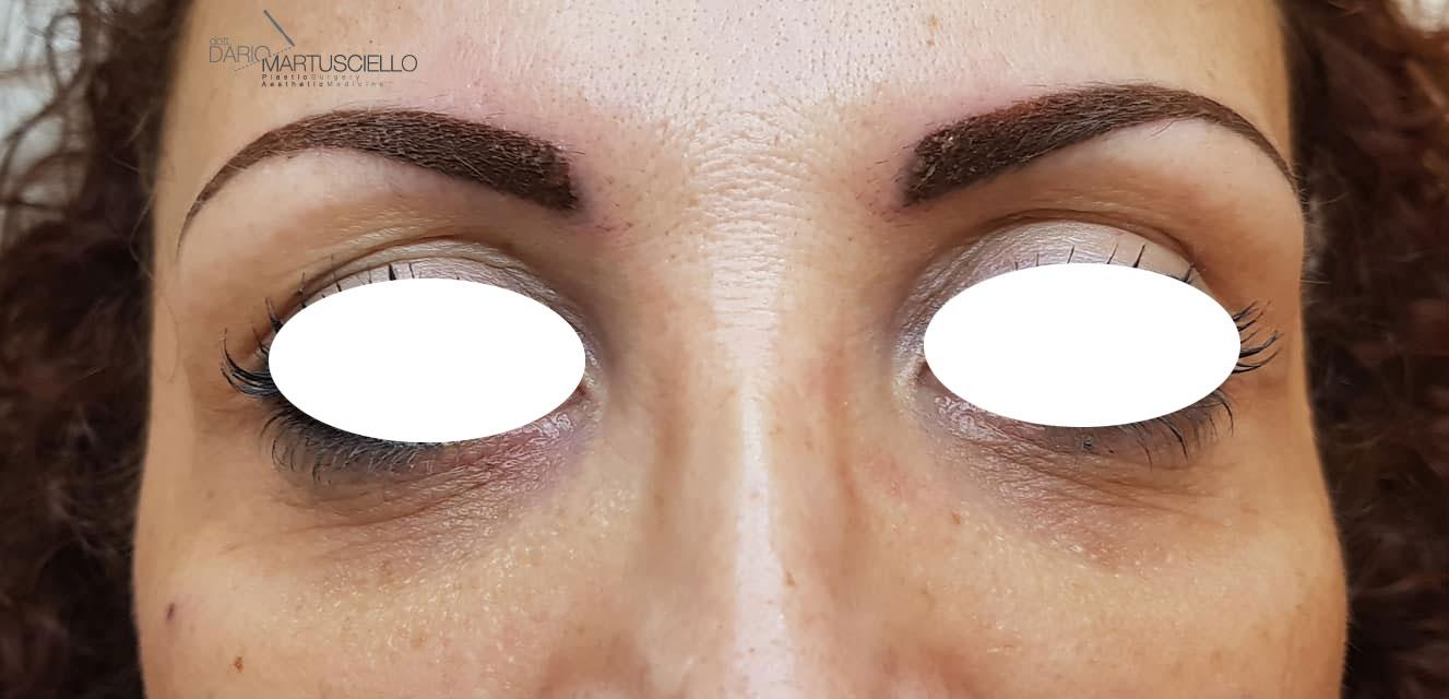 Before-Trattamento Occhiaie con micro-iniezioni di Acido Ialuronico