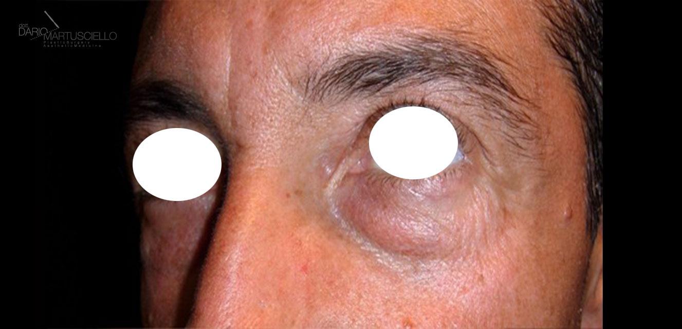 Before-Blefaroplastica inferiore trans-congiutivale