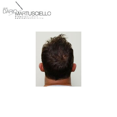 After-Capelli 1